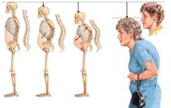 Остеопороз у женщин.